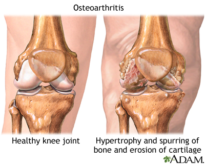Image of healthy knee joint and arthritic knee joint
